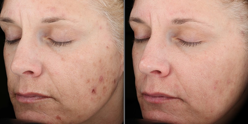 Skin Medica Vitalize Acid Peel Before And After | Pur One Med Spa